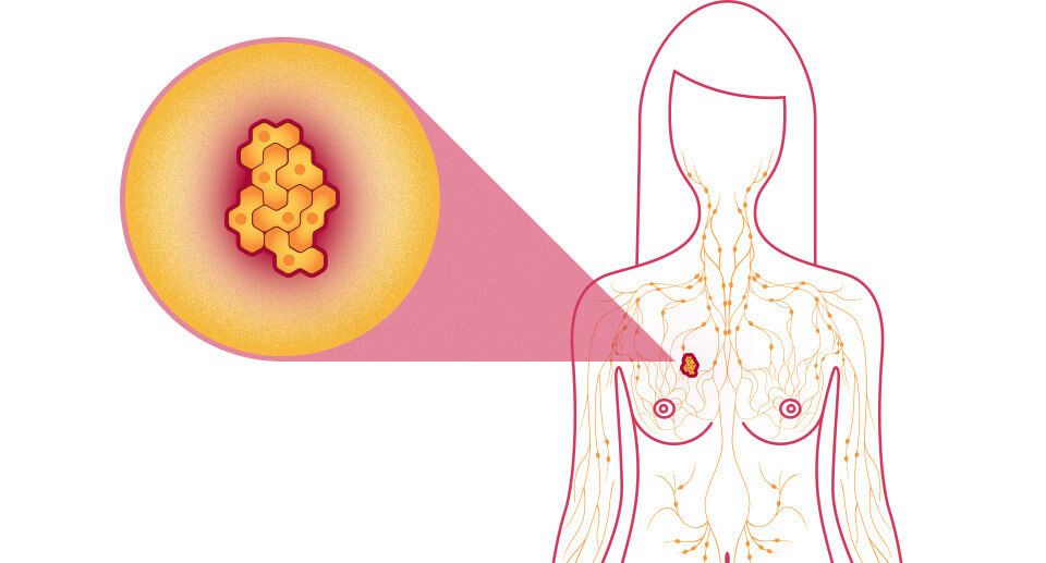 The best way to detect breast cancer early