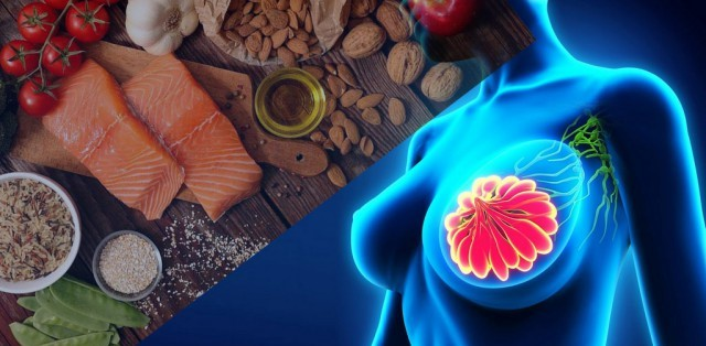 How a healthy diet helps prevent breast cancer